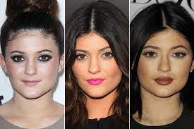 the other side of lip fillers no one s