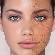 Image result for images of dry skin face