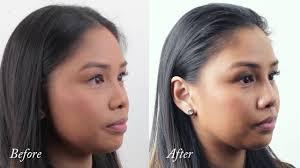 Asian non surgical nose job