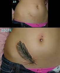 наколки на шраме татуировки на шрамах или как закрыть шрам