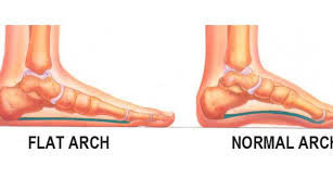 Flat Footed How To Fix Flat Feet Naturally By Raising The Arches Academic