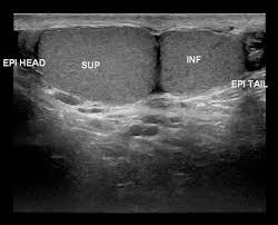 testicular cancer ultrasound. testicular cancer ultrasound