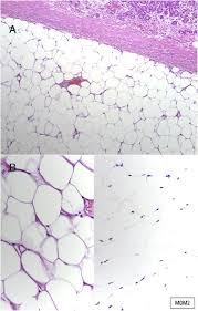 giant symptomatic gastric lipoma a