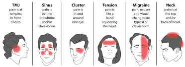 Diagram Of Head Pain Headache Location Chart Meaning