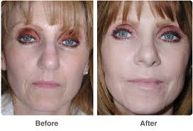 how soon can you wear makeup after a chemical l chemical ls middot glycolic kits makeup