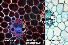 dark field microscopy microbehunter microscopy magazine blog archive darkfield microscopy