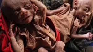 Resultado de imagem para hambrunas