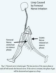 denver back pain specialists. Simple Pain Denver Back Pain Specialists Are You New To And O