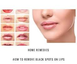 how to remove black spots on lips