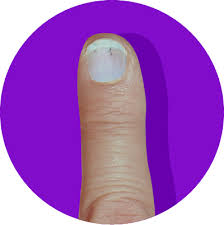 What These 8 Fingernail Textures And Colors Say About Your