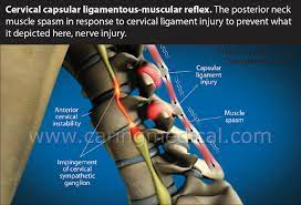 chronic muscle spasms and tightness can