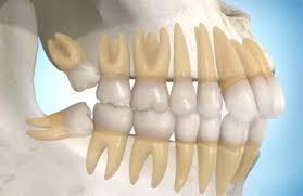 Răng khôn thường có hình dạng bất thường