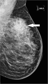 Breast mass on mammogram
