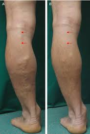 Figure 1 From Endovenous Laser Treatment Of The Small