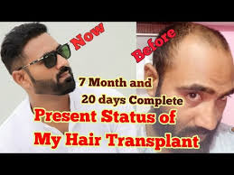 best hair transplant in india 2018