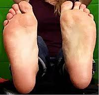 Flat Footed Flat Feet Wikipedia