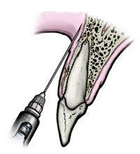 Анестезия в стоматологии Стоматология > Статьи и рефераты  Анестезия в стоматологии