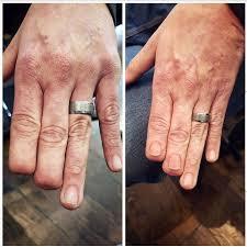 перекрытие татуировкой шрамов фото