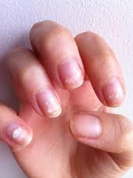 sac ruined my nails but opi s nail envy saved them