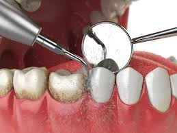 5 Facts About Your General Dentist