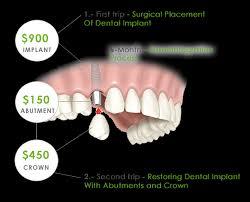 dental implants costs s