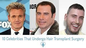 undergo hair transplant surgery