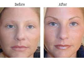 permanent makeup painful before after photos new york ny 03
