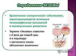 Презентация на тему Государственное бюджетное профессиональное  2 Хроническое аллергическое заболевание