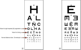 Nursing Patients With Disorders Of The Eye And Vision