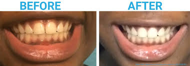 charcoal toothpaste before after