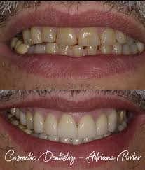 Beville Dental Care - Dentist & Dental Office - South Daytona, Florida    Facebook - 16 Reviews - 575 Photos