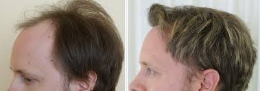 Why Would You Be A Good Candidate Are You A Good Candidate For Hair Transplant Surgery Hair