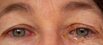 Sinus Infection, Pink Eye, Allergies: Top 9 Eye Discharge Causes | Buoy