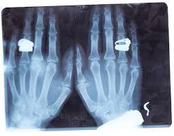 تصاویر جالب و خنده دار در رادیولوژی
