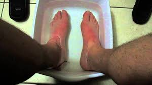 Image result for Diabetic neuropathy warm bath