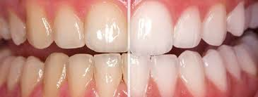 Image result for tooth bleaching