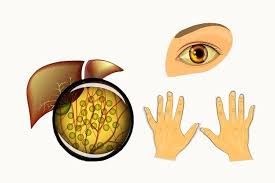 Resultado de imagem para hepatite