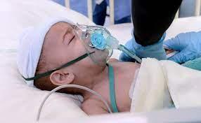 نجاح عملية فصل توأم طفيلي لطفل يمني بالسعودية