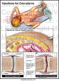 Injections For Coccydynia Medical Exhibit Medivisuals