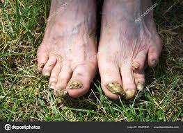Nohy Stařena Zohavené Nemocné Nehty Stock Fotografie Tsomkaigor