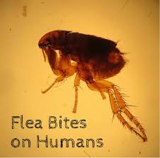 flea bites on humans symptoms and