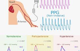 New China And Us Studies Back Use Of Pulse Oximeters For
