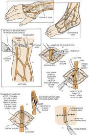 venous cut down definition of venous cut down by medical dictionary