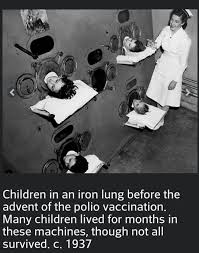 Image result for 1700 history polio ANESTHESIA