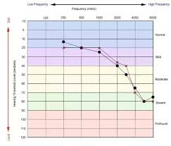 Hearing Chart What Would Be The Hearing Loss Db In A Person With 40