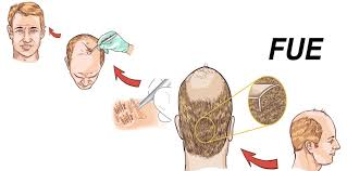 hair transplant how it works how follicular unit extraction fue hair transplant works hair