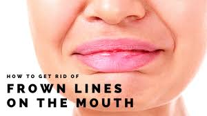 get rid of frown lines on the mouth