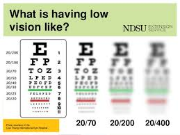 Vision Test Charts Flow Charts
