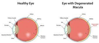 Macular Degeneration Chart Macular Degeneration Milwaukee Eye Examination Mequon