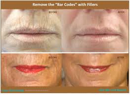 lip lines borders fillers